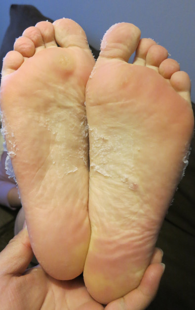 Nadia's Feet 10 Days After Using Baby Foot