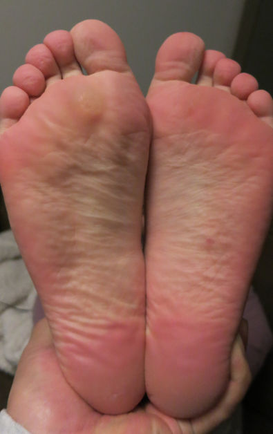 Nadia's Feet 13 Days After Using Baby Foot