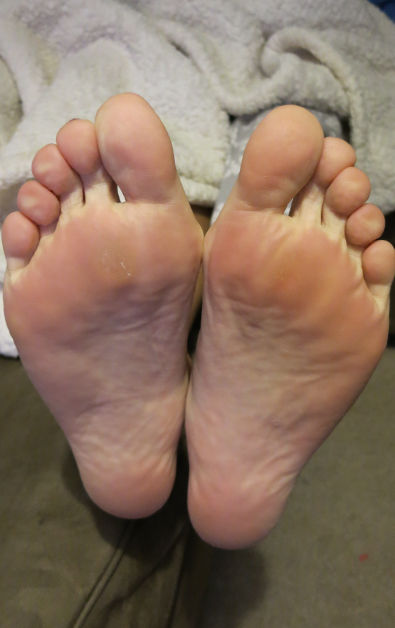 Nadia's Feet 2 Days After Using Baby Foot