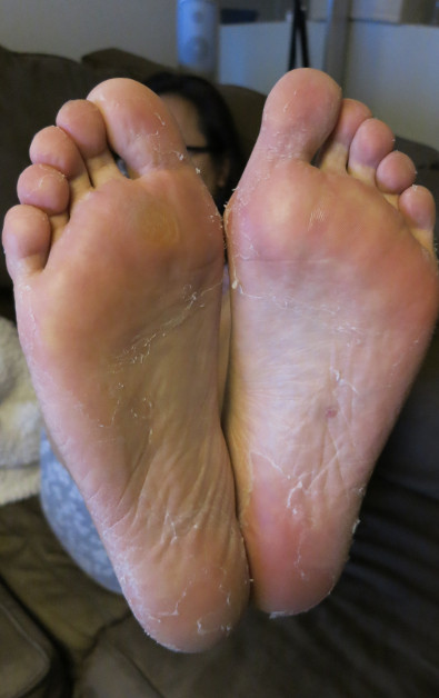 Nadia's Feet 7 Days After Using Baby Foot